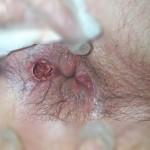Abces fistulizat