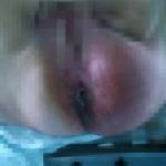 Gangrena perianala
