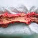 Polipoza rectala piesa de rezectie operatorie